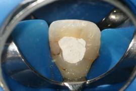 Manejo Microcirúrgico de Erro de Procedimento na Fase de Preparo Mecânico Apical em Endodontia: Transporte Apical.