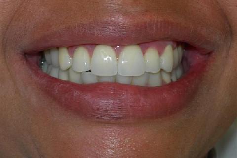 Resultado final. ( http://odontologiaestetica.com.br/antesdepois2.php?ID=114 )
