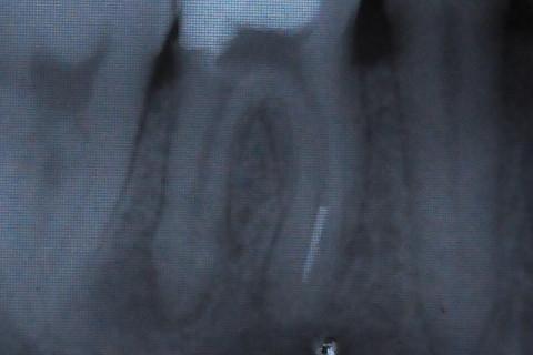 Rx Inicia - instrumento claramente fraturado na raiz mesio vestibular.