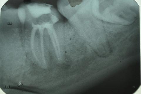 rx de acompanhamento; realizado em dezembro de 2013, mostrando evolução na reparação da lesão.