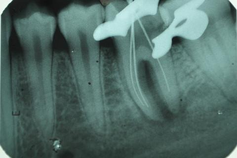 rx odontometria; ainda não tinha identificado o 4 conduto (perdi esse rx).