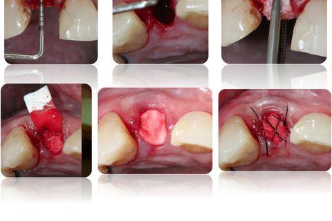 Sondagem do defeito vestibular e acomodação da membrana e biomaterial com sutura de contenção sem alteração da linha mucogengival.