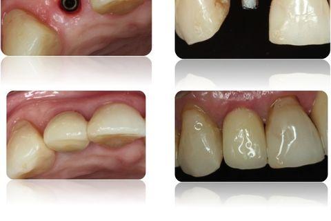 Manutenção do contorno vestibular e estética periimplantar após 24 meses.