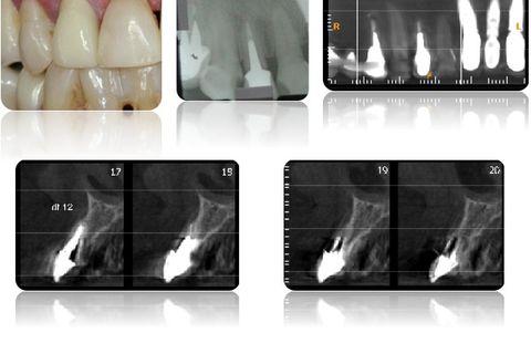 Aspecto clínico inicial e exames radiográficos.