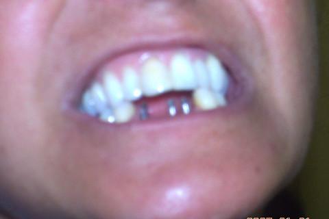 Implantes de carga imediata instalados e a visão do paciente sem os elementos inferiores, como era antes do trabalho. Paciente relatou perda de qualidade de vida, visto que nem saia mais de casa por vergonha de sua boca.