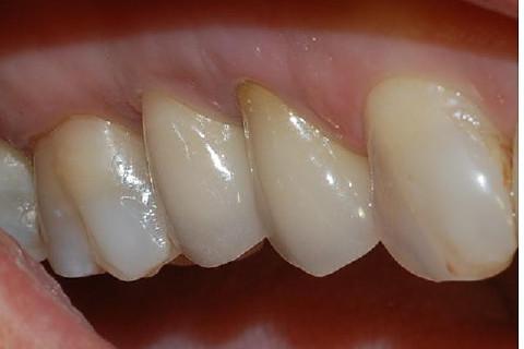 Segundo pré-molar sobre implante instalado com a técnica de elevação minimamente traumática de seio maxilar