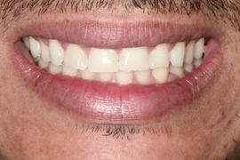 Remodelação dos Dentes Anteriores Superiores com Resina Composta –Excelência Estética e Funcional