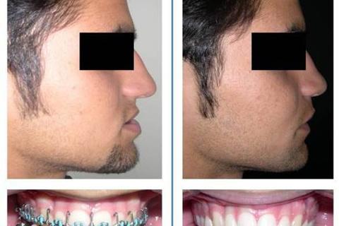 Deformidade dentofacial com menor repercussão estética, mas que ainda sim, a cirurgia ortognática juntamente com a ortodontia consegue possibilitar um resultado mais harmônico e estável a longo prazo.