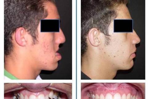 Deformidade dentofacial cuja magnitude facilita a indicação da cirurgia ortognática e a aceitação por parte do paciente.