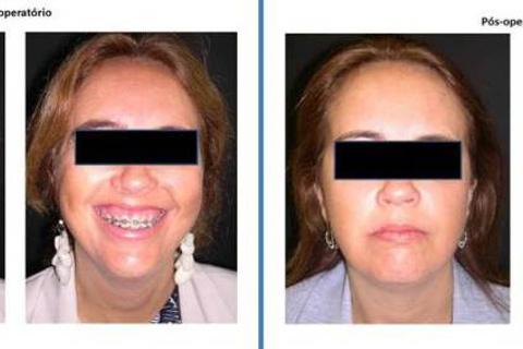 Excesso vertical de maxila caracterizado por sorriso gengival no pré-operatório.