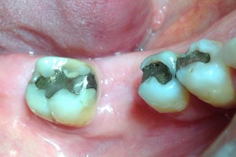 Aspecto clínico com 3 meses, demonstrando a manutenção da largura óssea (distância vestíbulo-lingual).